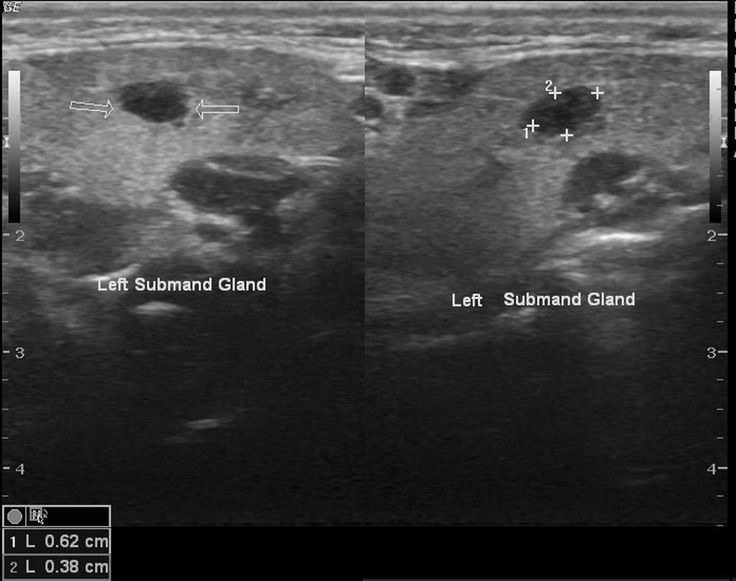 Ultrasound showing submandibular gland lesion-oncocytoma