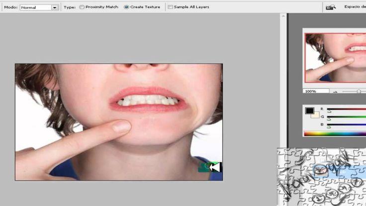 como eliminar barros en la cara o manchas (Photoshop) - http://solucionparaelacne.org/blog/como-eliminar-barros-en-la-cara-o-manchas-photoshop/
