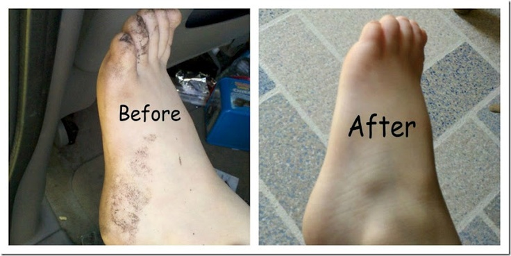 Removing Tar from Skin, Safely!