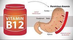 Les symptômes de la carence en vitamine B12 et comment la traiter