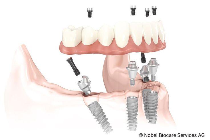 Tipos de implantes dentales, un modelo para cada necesidad