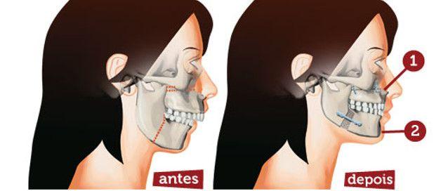 Cirurgia Ortognática | renda.se