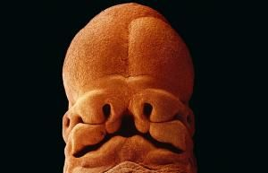 When Lennart Nilsson's pictures of developing embryos were published in Life    magazine in 1965, they caused a sensation. Within days, the entire print run    of eight million had sold out. More than 40 years later, the photographs    have lost none of their power    Five weeks. The embryo is approximately 9mm long. A face develops, with    openings for the mouth, the nostrils and eyes    To receive an         update every time we publish a new picture gallery, follow TelegraphPics…