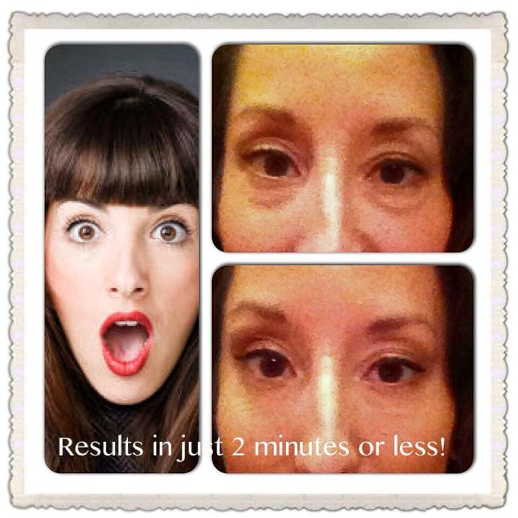 Younger, fresher skin in minutes!