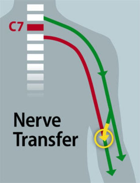"Surgeons have restored some hand function in a quadriplegic patient with a spinal cord injury at the C7 vertebra, the lowest bone in the neck. Instead of operating on the spine itself, the surgeons rerouted working nerves in the upper arms. These nerves still ""talk"" to the brain because they attach to the spine above the injury."