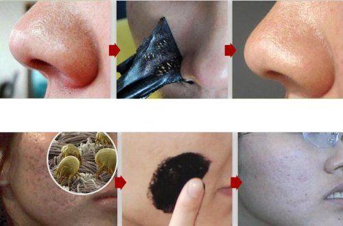 12 Nose Blackhead Removal Strips - Pore Masks Pilaten http://www.amazon.com/dp/B00AA297F2/ref=cm_sw_r_pi_dp_mELLtb1RQE07WXA9