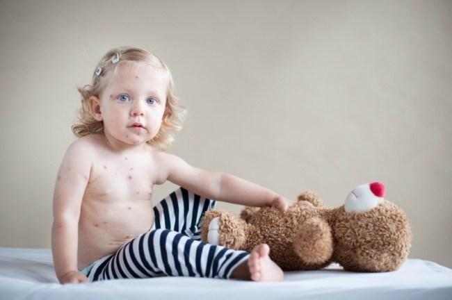 A vueltas con el debate: ¿Es segura la vacuna de la Varicela?