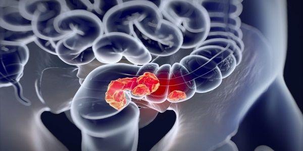 Καρκίνος παχέος εντέρου & ορθού: Γιατί αυξάνονται τα ποσοστά;