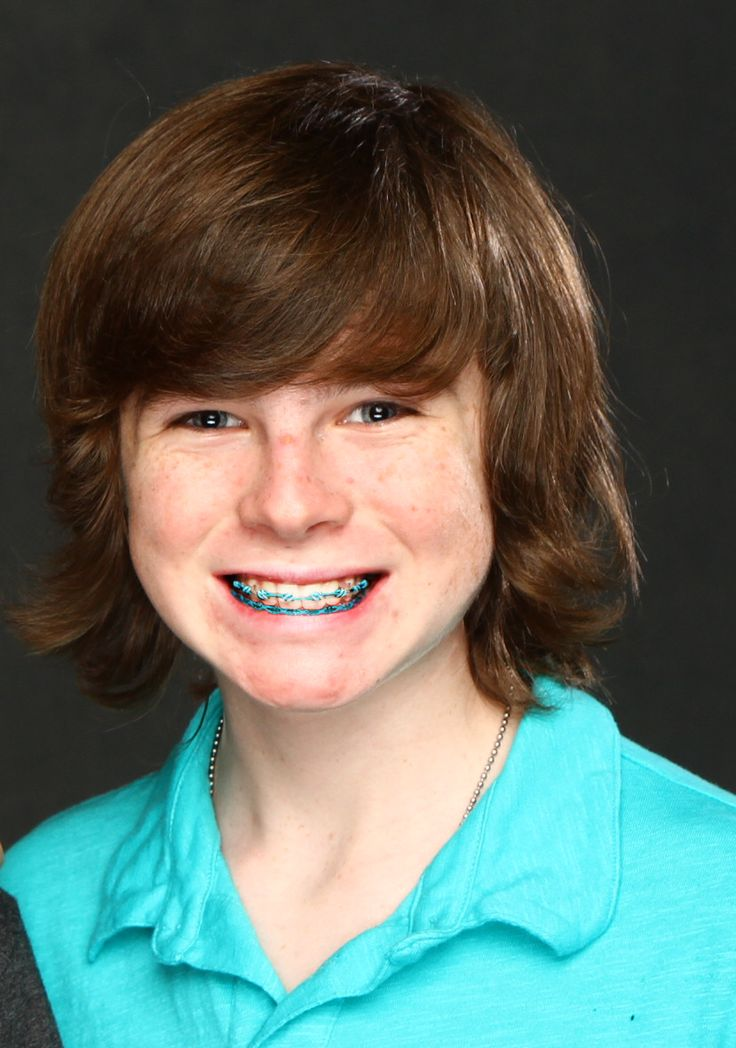 Chandler Riggs a.k.a Carl Grimmes wearing braces