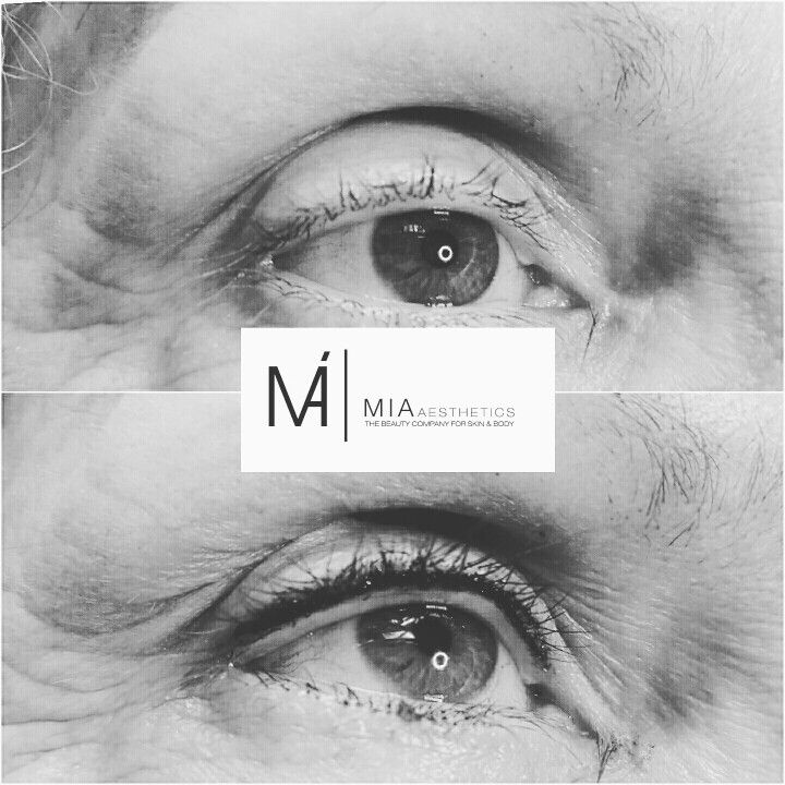 #Beauty #MicrobladingHessen #Micropigmentation #MIAAesthetics #Microblading #Eyebrows #Augenbrauen