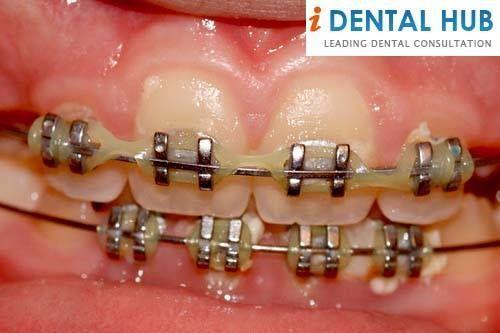 How to Clean Stains After Braces#Dental #healthy #teeth #smile #dentist #DeMarco&Tilkin #Orthodontist