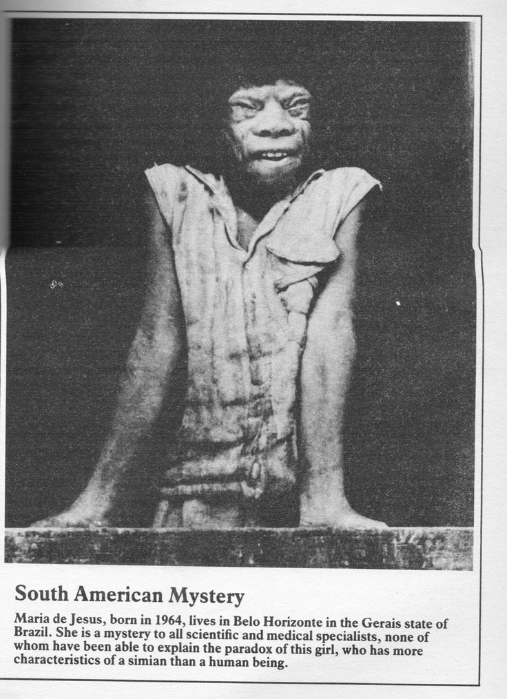 A picture in Mike Parker's 'The World's Most Fantastic Freaks' which claims this photo is of Maria de Jesus, born in 1964, who lives in Belo Horizonte, Brazil.  I've tried to find information about her on the internet but have, so far, drawn a blank.