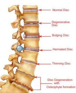 Lower Back Pain Remedies Lower Back Pain Remedies - Chinese Style   @Bette Barnett
