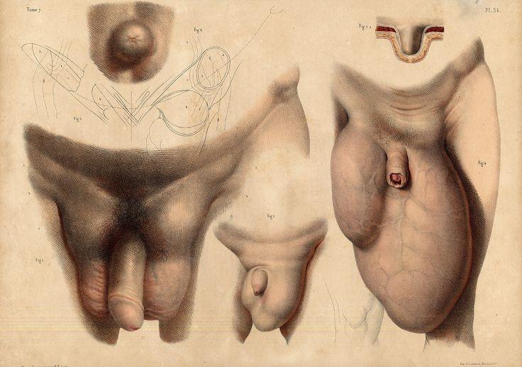 Tome 7. Pl. 34. Nicolas Henri Jacob - Illustration for Traité complet de l'anatomie de l'homme comprenant la médecine opératoire (1831-1854  https://pinterest.com/pin/287386019941966857/) by Jean-Baptiste Marc Bourgery (https://pinterest.com/pin/287386019948321810). Hernie inguinale, hernie scrotale. Antique Medical Anatomy Prints Hernia Scrotum Penis.