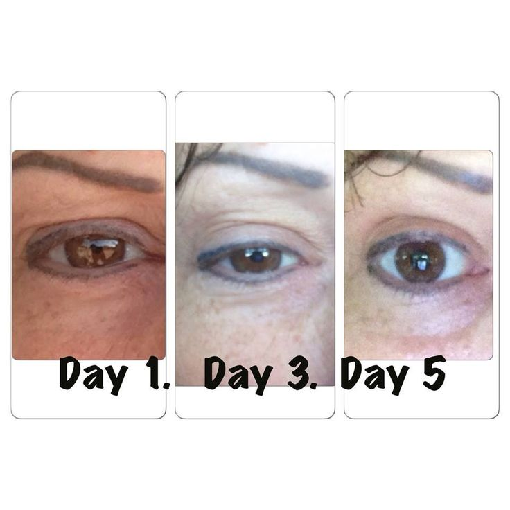 Younique's New Uplift Eye Serum has been giving customers amazing results so far and the best part is it costs less than 37 cents per day to get amazing results!!   Happy users are reporting less bags under the eyes, tighter skin and a reduction in visible lines and wrinkles. A 6 month supply …