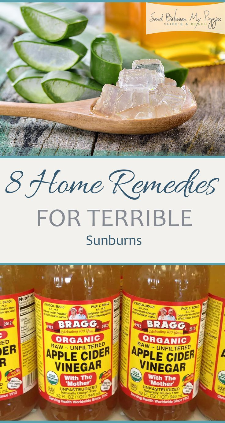 8 Home Remedies for Terrible Sunburns