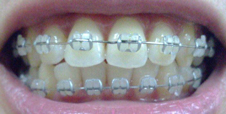 ceramic+braces+gray+bands | Photo taken: 05 Jan 2013
