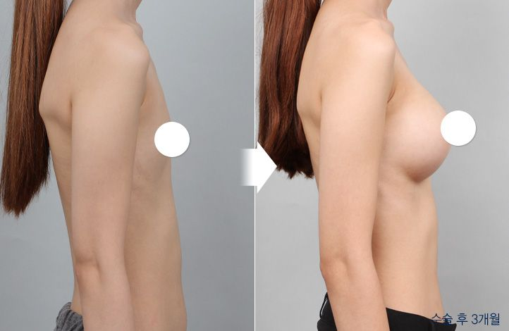 {PATIENT 2} Side view of before and after breast surgery. For more infomation go to: en.daprs.com #DAplasticsurgery #plasticsurgery #cosmeticsurgery #beauty #koreabeauty #summerbody #summerconfidence #confidence #selfesteem #trnsformation #koreaplasticsurgery #korea #gangnam #plasicsurgeryclinic #beforeafter #beforeandafter