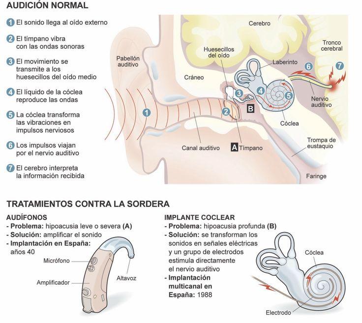 Único Anatomía De La Cóclea Molde - Imágenes de Anatomía Humana ...