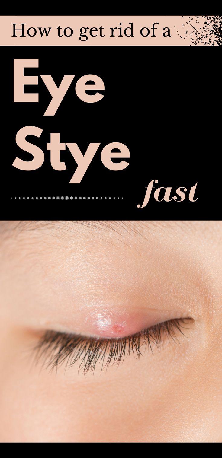 how to treat stye in eye fast
