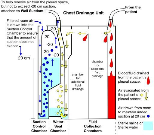 chest tube diagram water seal suction control chamber - Google Search