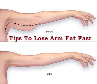 Tips To Lose Arm Fat Fast