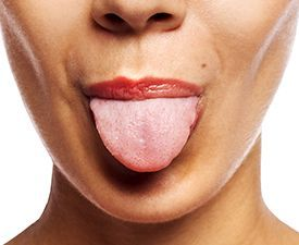 Changes in tongue color or pain in your tongue can be an indication of a serious condition. A Cleveland Clinic family physician discusses why you should watch for changes on your tongue.