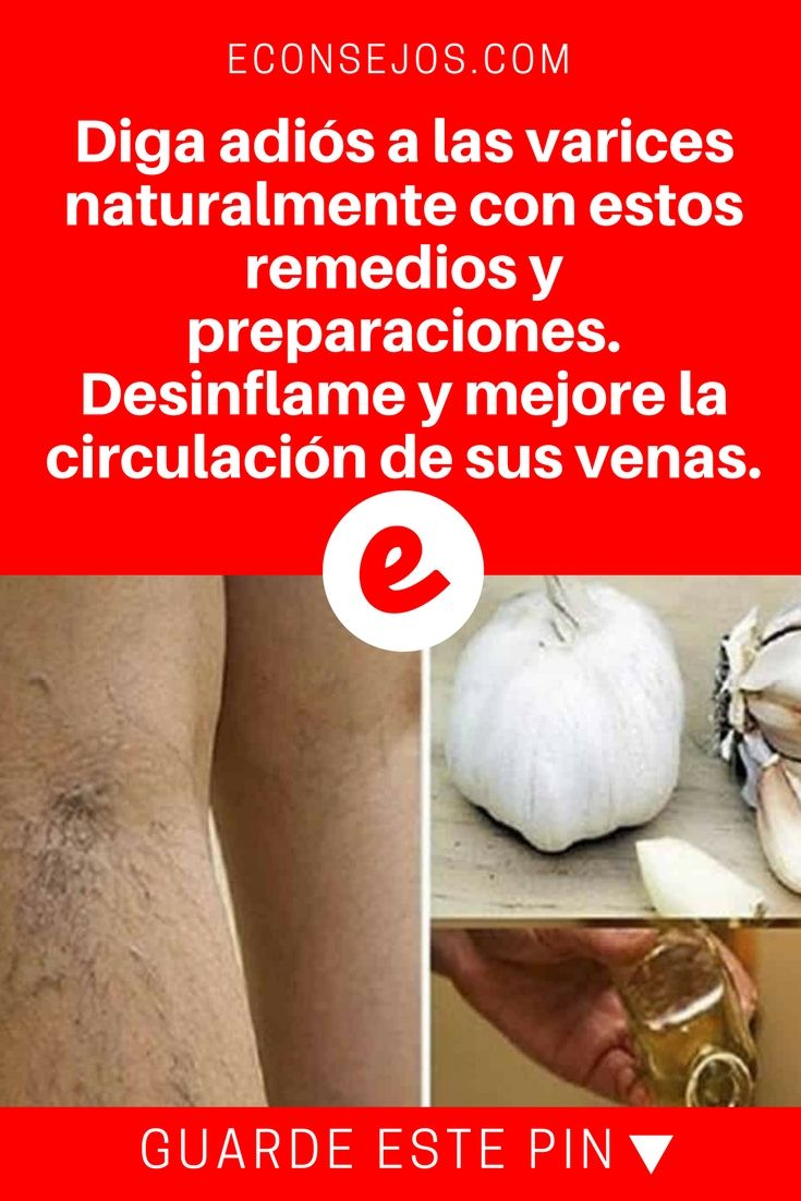 Eliminar varices | Diga adiós a las varices naturalmente con estos remedios y preparaciones. Desinflame y mejore la circulación de sus venas. | DIGA ADIÓS A LAS VARICES naturalmente con estos remedios y preparaciones. DESINFLAME Y MEJORE LA CIRCULACIÓN DE LAS VENAS. --->>>