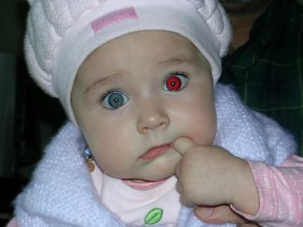 vampir gözlü bebek
