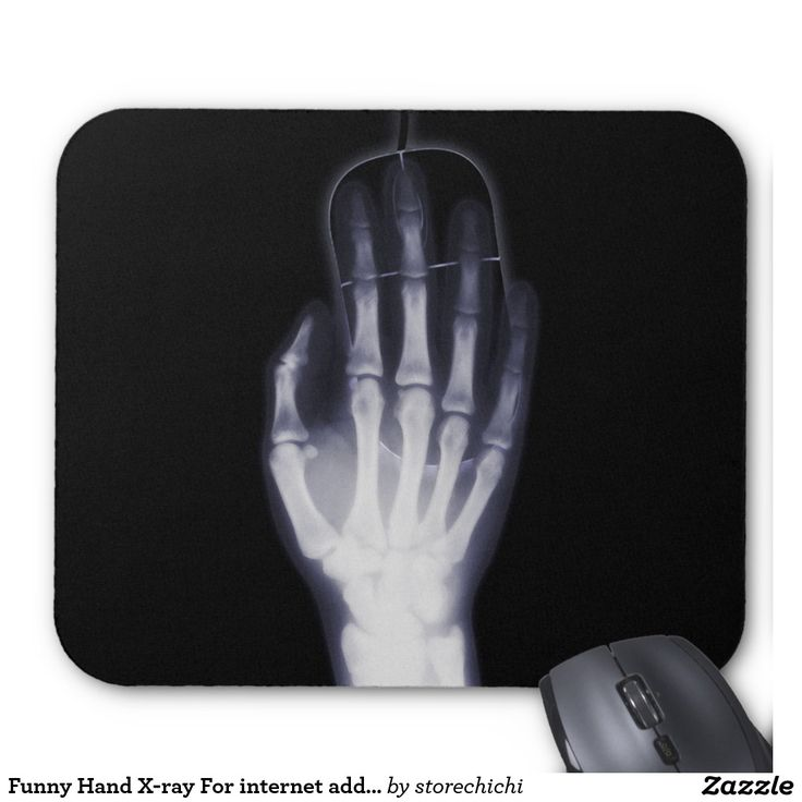 Funny Hand X-ray For internet addictioner