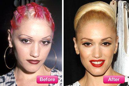Best celebrity brow transformations in geometry