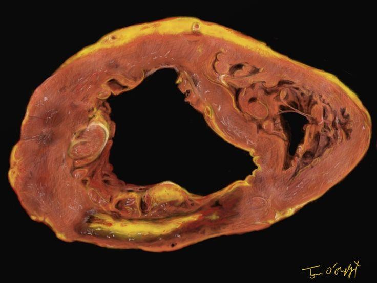 Syndrome coronarien aigu, infarctus du myocarde et angor instable | thoracotomie