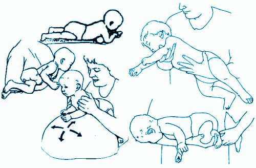 1000 Ideas About Cerebral Palsy Treatment On Pinterest