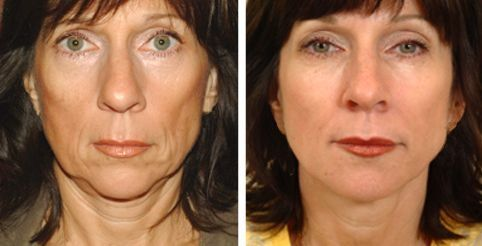 Become Skilled At Cool Facial Firming Gymnastics To Appear Younger And Strengthen Loose Face Skin