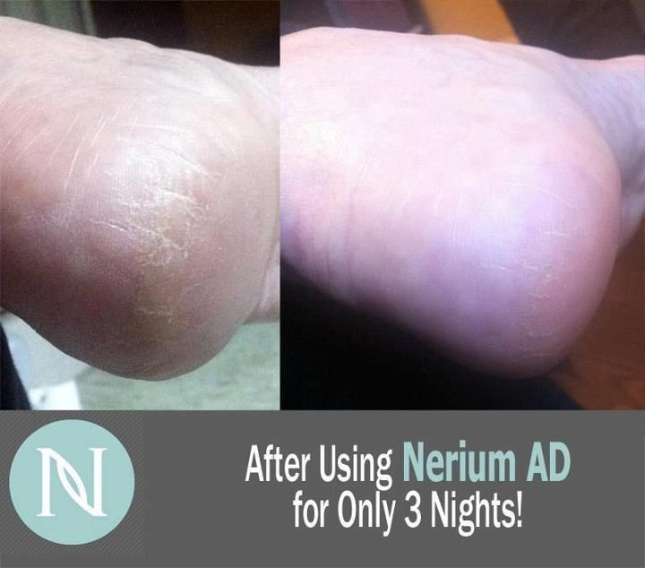 No need for pedicures now!!! Nerium AD  www.rstibbens.nerium.com