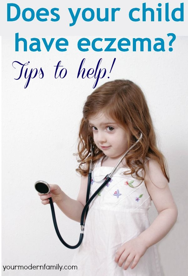 How to help your child with eczema