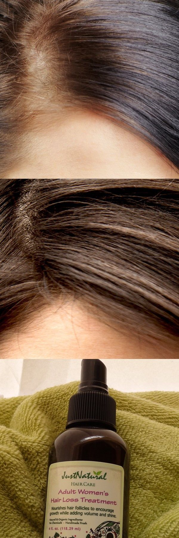 Adult Women's Hair Loss Treatment #hairlossremedymen #hairlossremedywomen