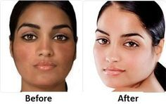 What are the best skin whitening pills? Here are before and after pictures, reviews and testimonials on over the counter skin lightening pills that work and are used by celebrities and dark-skinned women who want to lighten their skin naturally. Also see the listed side effects of glutathione pills.