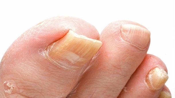 Ein verdickter und verfärbter Fußnagel weist auf Nagelpilz hin. (Quelle: Thinkstock by Getty-Images)