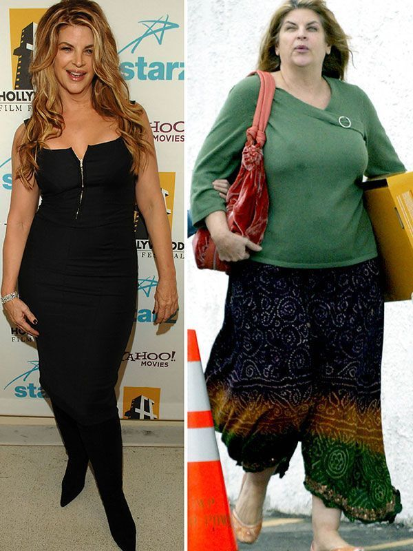 Very inspiring story! Kirstie Alley Before and After Weight Loss Motivation Pics