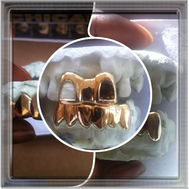 Top Amp Bottom Grillz Plus Gap Filler Teeth Grillz