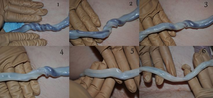 Transformation of the umbilical cord after birth. The importance of delayed cord clamping!
