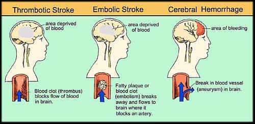major types of stroke types of stroke stroke