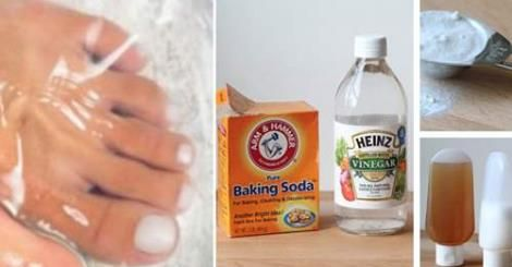 Strong and Beyond: Easy Way To Get Rid of Nail Fungus Forever