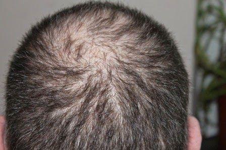 Cara Mengatasi Rambut Rontok Secara Alami Dan Cepat | Perawatan Rambut