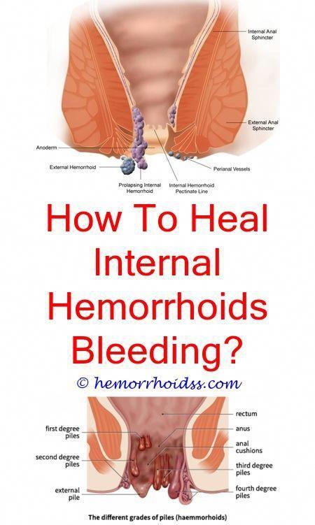 Does sex make hemorrhoids worse