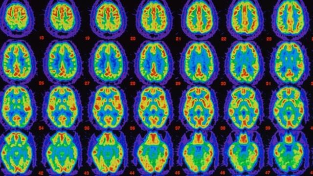 Skin Cells May Offer New Hope For Alzheimer's