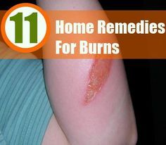 http://11 Home Remedies For Burns