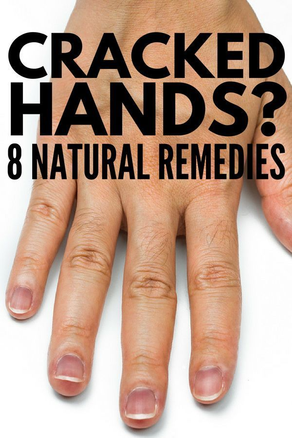 Severely Cracked Hands 8 Tips Remedies For Fast Relief Dry Cracked Hands Extremely Dry Hands Cracked Hands