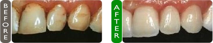 Before and After Dental Crowns in Croatia at Smile Studio. Choose the best services, for best results! | PlacidWay  #dentalcrown